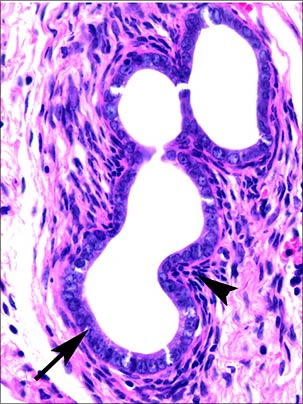 Endometriosis And Ovarian Cancer Modeled In Mouse Mit News Massachusetts Institute Of Technology