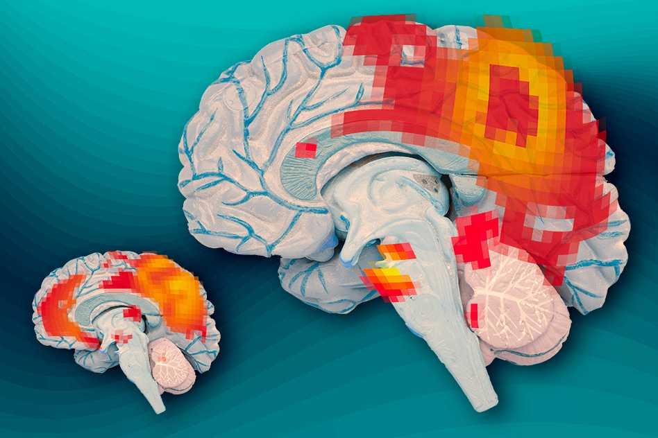 Inside The Adult Adhd Brain Mit News Massachusetts Institute Of Technology