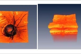 Images of the human optic nerve head. Comparison of surface appearance (left) versus three dimensional optical coherence tomography (OCT) imaging requires extremely fast measurement speeds because 3D data sets are large. 3D OCT data can be processed to visualize the detailed internal structure of the retina. These technologies can detect subtle changes in the retina which indicates early stage dis...