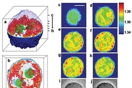 Images of a cervical cancer cell taken using a new imaging technique developed at MIT. Figures a and b show 3D images of the cell. The green structures represent the nucleolus. The nucleus, not visible in these images, surrounds the nucleolus. The red areas are unidentified cell organelles. Figures c through h show the 2D images from which the 3D images were generated. In these images, each color ...