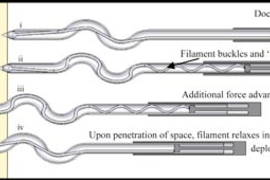 Diagram showing how a new needle developed at MIT works (from top to bottom): i. Doctor pushes here.  ii. Filament buckles and 'locks' inside tube.  iii. Additional force advances entire device. iv. Upon penetration of space, filament relaxes inside tube and deploys into space.