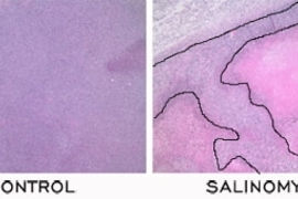In a comparison of a control to the chemical identified by the Weinberg/Lander team, called salinomycin, the tumor cells (stained dark purple in both slides) were unaffected by the control, but salinomycin killed many tumor cells (stained pink).