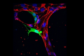 A tumor cell (green) pushes halfway through a blood vessel (red).