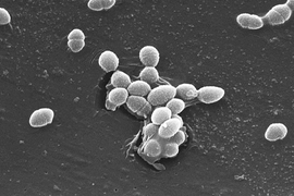 The bacterium, Enterococcus faecalis, which lives in the human gut, is just one microbe type that will be studied as part of NIH's Human Microbiome Project
