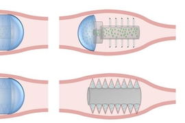 This therapeutic-use illustration of the microneedle pill shows the use of hollow needles and solid needles made from sugars or polymers. In both cases, the pill's needles are initially coated by a pH-responsive coating to aid in ingestion (left). When the pill has reached the desired location in the GI tract, the coating dissolves, revealing the microneedles (middle). In the case of hollow mi...