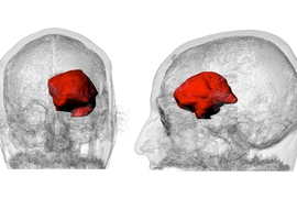 A 3-D visualization of Keating's MRI data with the large astrocytoma tumor highlighted in red.
