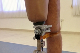 A prototype of the prosthetic knee mechanism was tested at a Jaipur Foot organization in India.