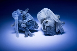 New system from MIT and Boston Children's Hospital researchers converts MRI scans into 3D-printed heart models (shown here).