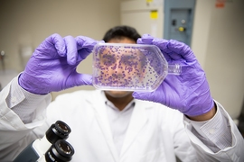Tushar Kamath counts stained cells after treatment with a drug.