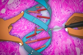 A new gene therapy technique being developed by researchers at MIT uses microRNAs — small noncoding RNA molecules that regulate gene expression — to control breast cancer metastasis.