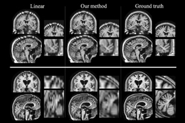 Researchers at MIT and other institutions have devised a way to boost the quality of low-resolution patient MRI scans so they can be used for large-scale studies. Images produced by their algorithm, shown in the center column, are much closer to high-resolution scans shown in the right column. In the left column are images produced by a different technique for improving low-resolution scans.