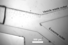 Exosomes are separated from other vesicles as they flow through a microfluidic channel, guided by sound waves.