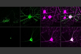 MIT researchers have devised a way to control single neurons using optogenetics. To help achieve this, they developed an opsin, or light-sensitive protein, that can be targeted to neuron cell bodies (bottom row). Neurons in the top row have traditional opsins that are distributed throughout their axons.