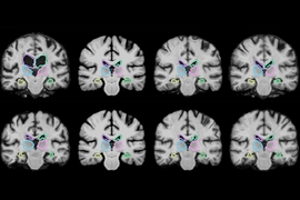 MIT researchers describe a machine-learning algorithm that can register brain scans and other 3-D images more than 1,000 times more quickly using novel learning techniques.