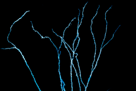 MIT neuroscientists can now record electrical activity from the dendrites of human neurons.