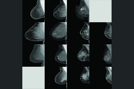In training and testing, the model learns to map mammogram features with correct density ratings from human experts in four categories — fatty, scattered, heterogeneous, and dense. It achieved a 94 percent agreement among Massachusetts General Hospital radiologists over 10,000 mammograms. In this image, the model's density predictions are in the four columns, left to right; the radiologists'...