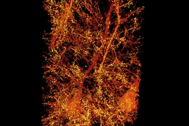 A subset of pyramidal neurons (orange) in the mouse primary somatosensory cortex. The dendritic spines associated with the postsynaptic protein Homer1 are highlighted in yellow.