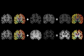 MIT researchers have developed a system that gleans far more labeled training data from unlabeled data, which could help machine-learning models better detect structural patterns in brain scans associated with neurological diseases. The system learns structural and appearance variations in unlabeled scans, and uses that information to shape and mold one labeled scan into thousands of new, distinct...