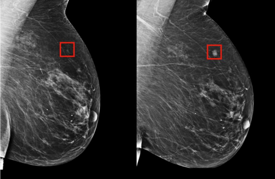 AI Improves Precision in Breast Cancer Diagnosis