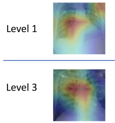 Anticipating heart failure with machine learning