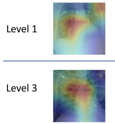 Images of level 1 versus level 3 pulmonary edema